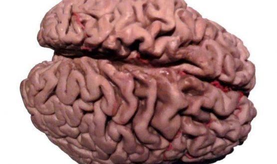 glucose-metabolism-alzheimers-neurosciencenews-public